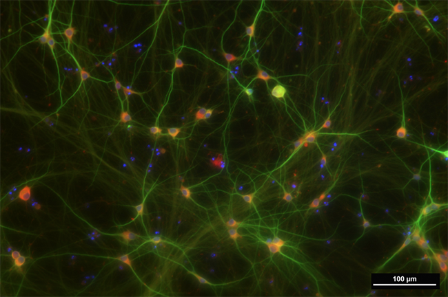 Human neurons express the amyloid precursor protein (APP; red)