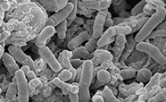 Scanning electron micrograph of bacteria in faeces of an infant fed breast milk (x9,500)