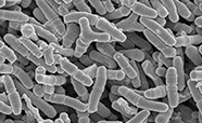 Scanning electron micrograph of bacteria in faeces of an infant fed breast milk (x7,500)