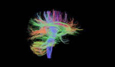 IT-Research-Brain-small-image
