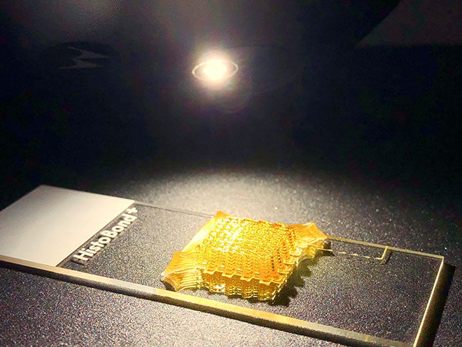 The gel-like consistency of bioink enables its printing into 3D structures which are stabalised by light-curing