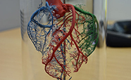 Model of Heart (from Christchurch Heart Institute in 2017) thumbnail