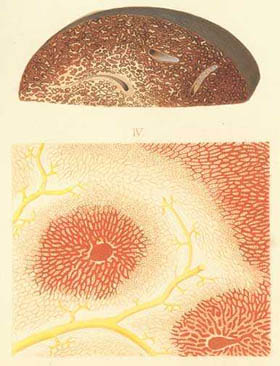 A liver and a magnified lobule - Drawing from Diseases of the Liver by FT Frerichs 1862