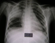 Chest X-ray of Pneumonia patient