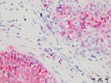 Immunohistochemical staining