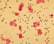 Gram-positive Streptococcus pneumoniae showing as dark purple bodies in a sputum sample. The larger pink cells are white blood cells.